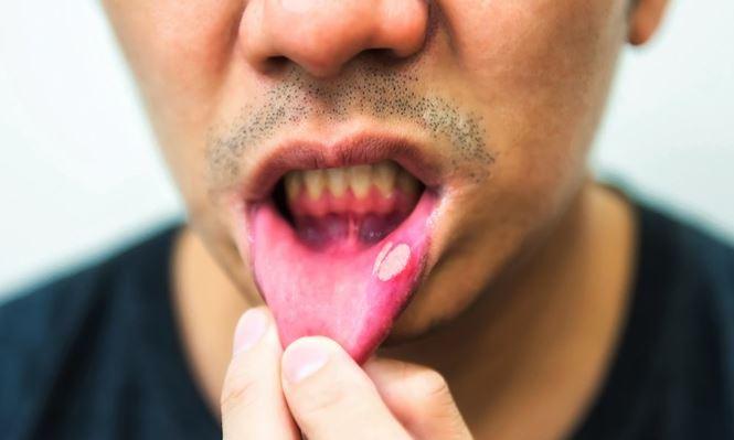 Cảnh báo: Phát hiện 'thủ phạm' mới gây ung thư miệng - Ảnh 2