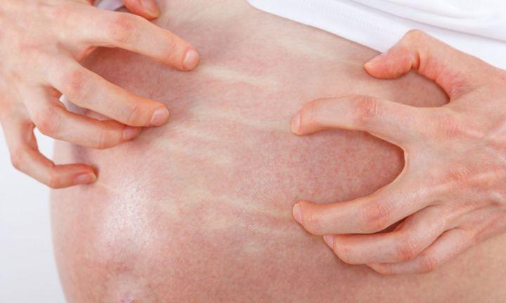Ðối phó với bệnh gan trong thai kỳ - Ảnh 3