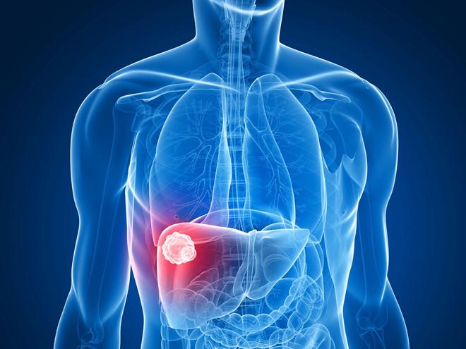 Bệnh ung thư đã trở nên phổ biến và đe dọa tính mạng của nhiều người