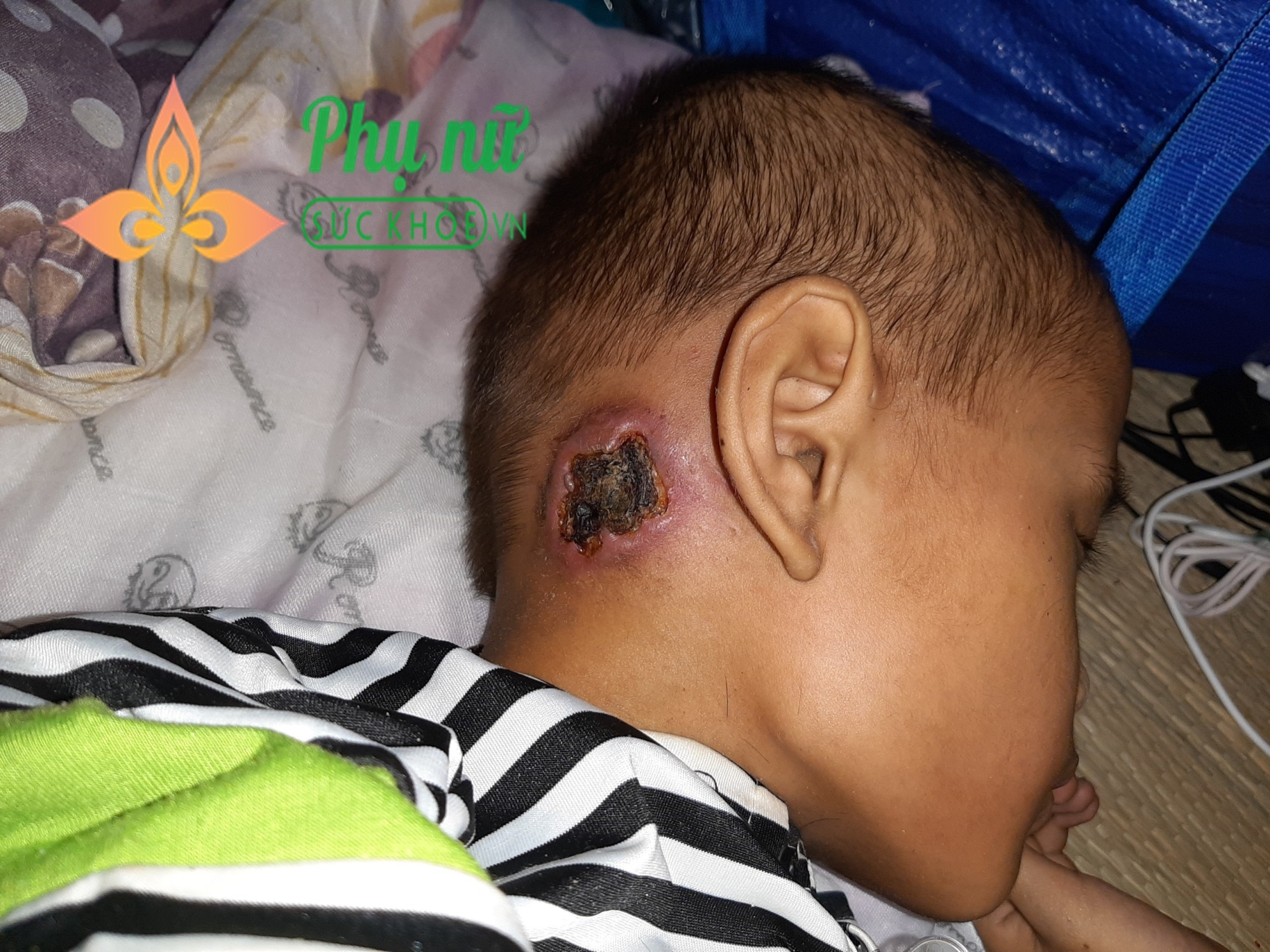 Xót xa bé trai bị bệnh ung thư xương, khắp người lở loét, oằn mình đau đớn chiến đấu với bệnh tật - Ảnh 4