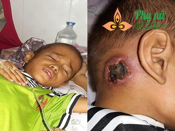 Xót xa bé trai bị bệnh ung thư xương, khắp người lở loét, oằn mình đau đớn chiến đấu với bệnh tật - Ảnh 1