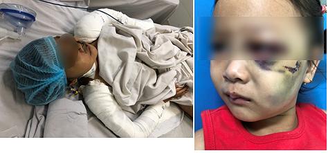 Bác sĩ trăn trở xử lý tai nạn trẻ em trong ngày Tết - Ảnh 2