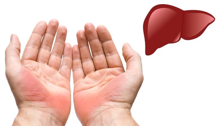 Những dấu hiệu ở bàn tay 'tố cáo' bạn đang mắc bệnh nguy hiểm - Ảnh 1