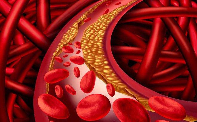 Mỡ máu cao: Cách nhận biết bệnh nhanh chóng và giải pháp điều trị bệnh tích cực  - Ảnh 1