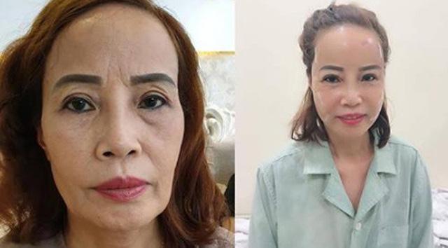 Hành trình thay đổi nhan sắc trẻ trung như u40 của cô dâu 62 tuổi  - Ảnh 7