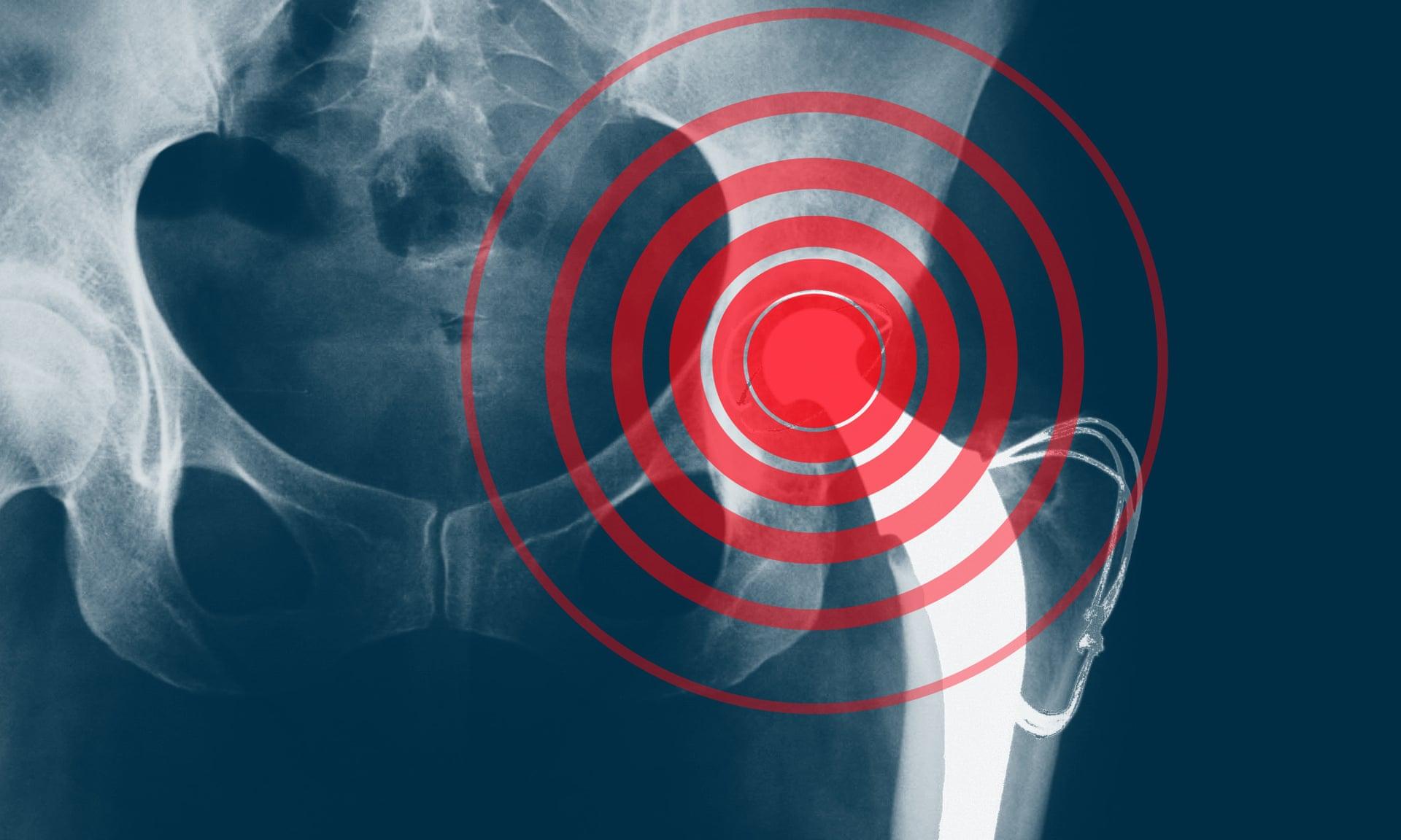Nhiều trường hợp các thiết bị cấy ghép như khớp háng nhân tạo không được thử nghiệm trước khi đưa ra thị trường