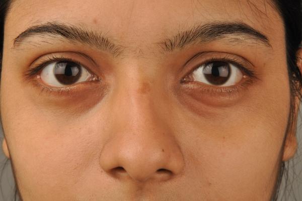 Thiếu ngủ là nguyên nhân hàng đầu gây nên thâm quầng mắt.