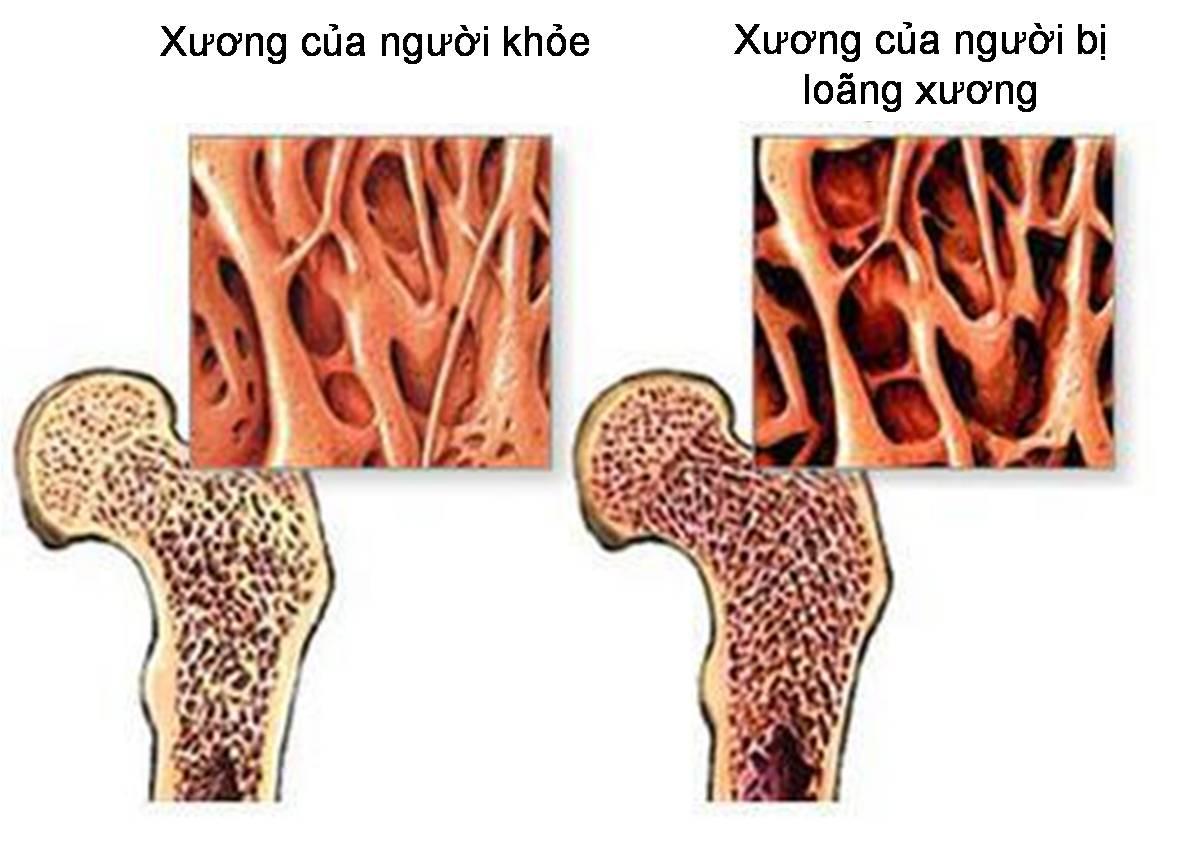 Loãng xương (giòn xương, xốp xương) là tình trạng suy giảm mật độ xương, tổn thương cả cấu trúc hữu cơ và vô cơ