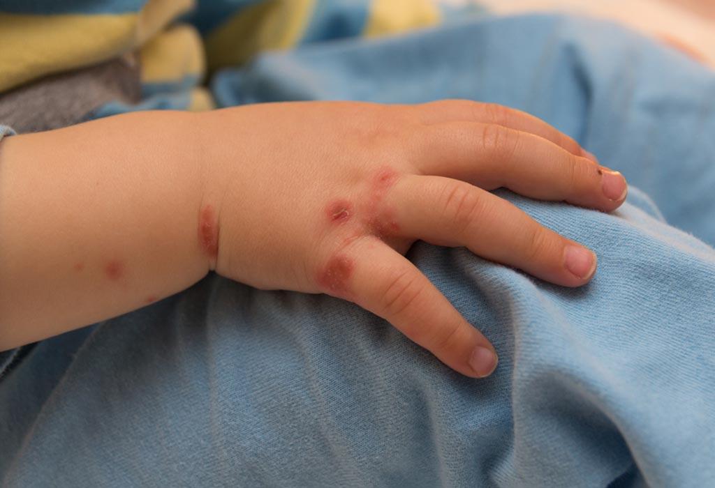 Chủ động phòng chống bệnh tay chân miệng ở trẻ em khi vào mùa dịch - Ảnh 6
