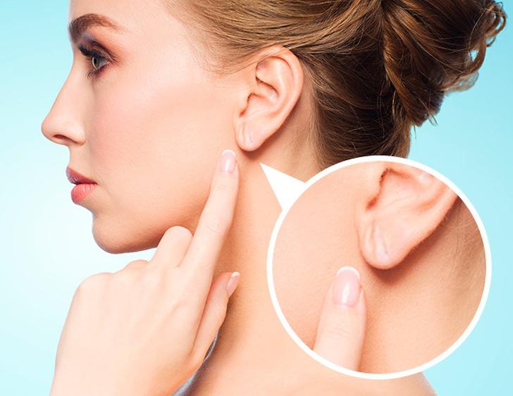 Nếp nhăn ở tai là một trong những dấu hiệu cảnh báo sớm bệnh tim mạch