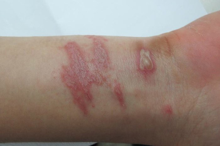 Trẻ bị kiến ba khoang cắn, bác sĩ Nhi hướng dẫn nên làm điều này để tránh bỏng da - Ảnh 2