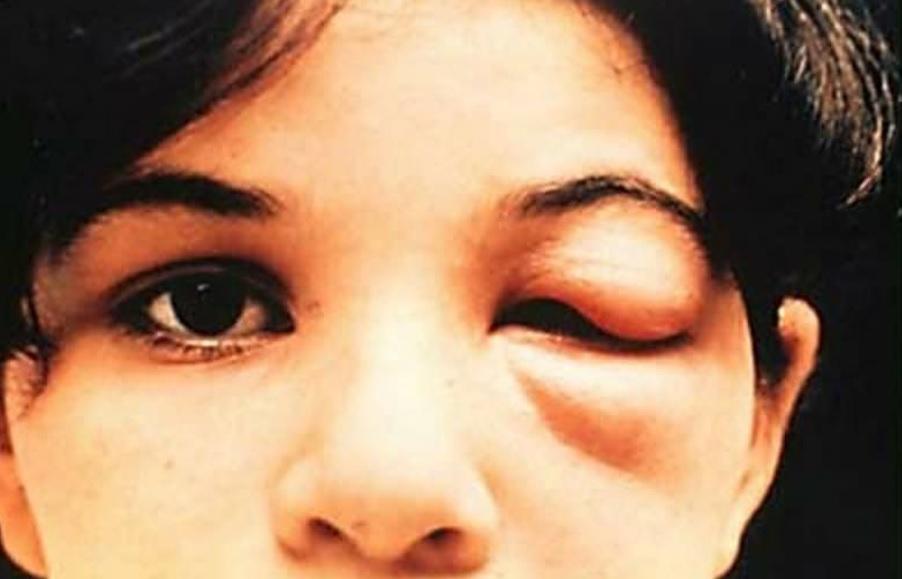 Thấy con bọ này trong nhà phải tới bệnh viện ngay lập tức bởi nó có thể khiến bạn đau đớn hơn cả chết - Ảnh 3