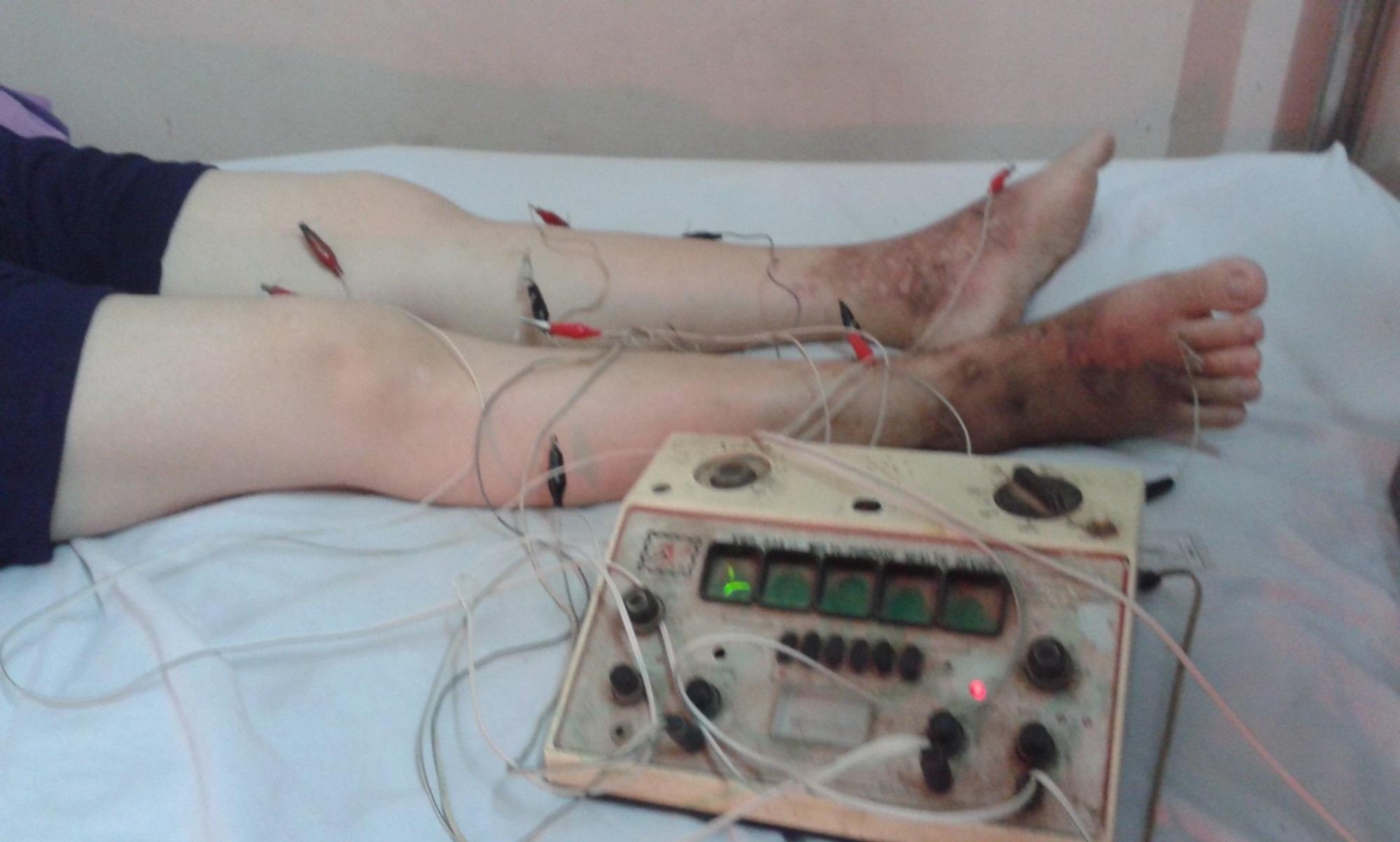 Sai lầm thường gặp của bệnh nhân suy giãn tĩnh mạch - Ảnh 3
