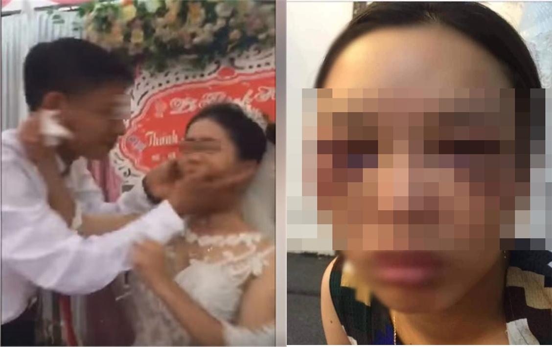 Xôn xao hình ảnh cô dâu bị đánh sau khi đẩy chú rể hôn trong đám cưới - Ảnh 2