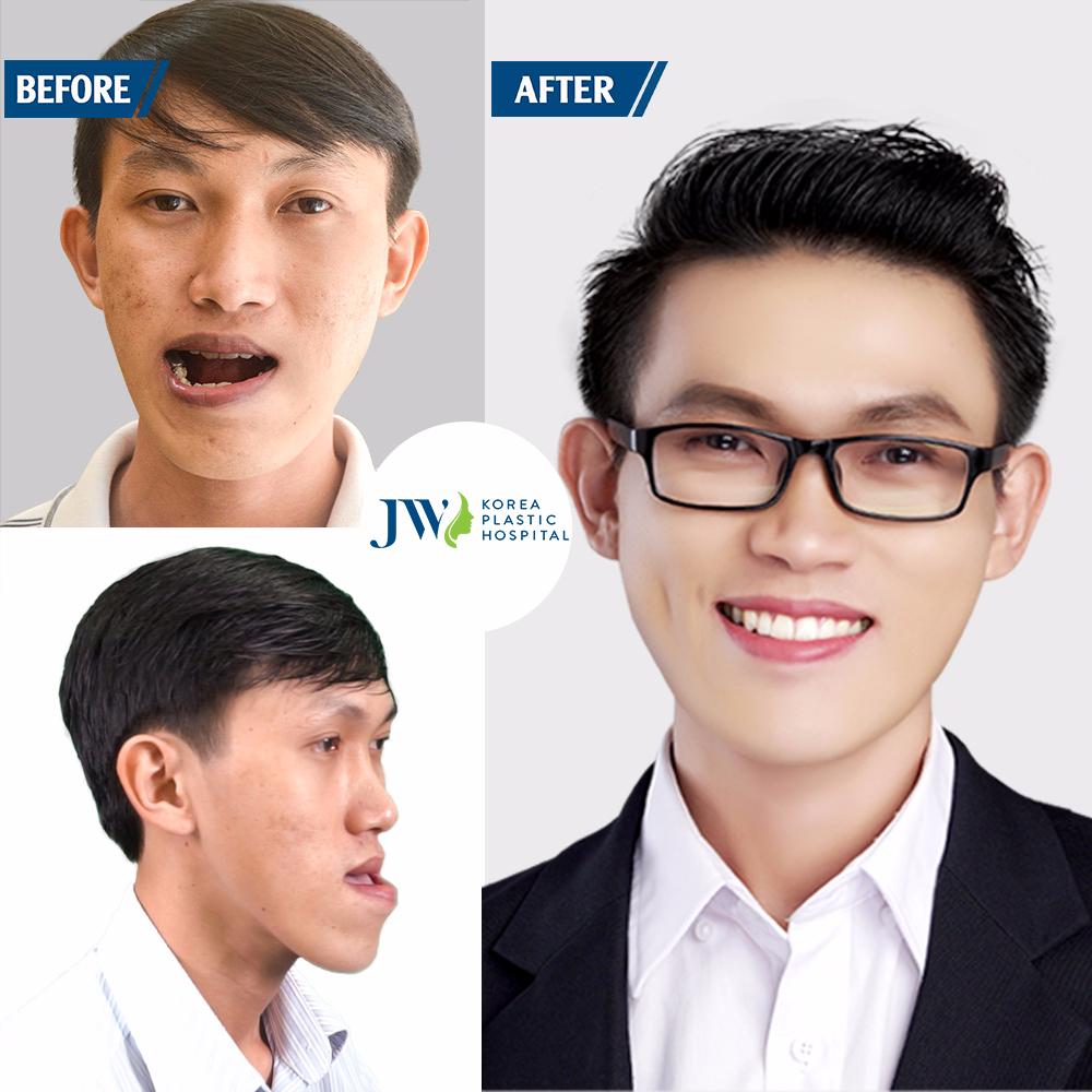 Thạc sĩ xe ôm liều mình cắt 2 hàm để trở thành người bình thường - Ảnh 4