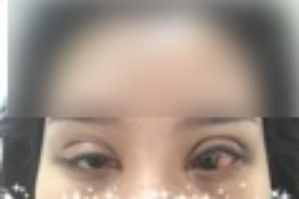 Cắt mí giá rẻ tại spa: Gái trẻ phát khóc vì mắt trợn, đêm ngủ không nhắm được mắt  - Ảnh 3