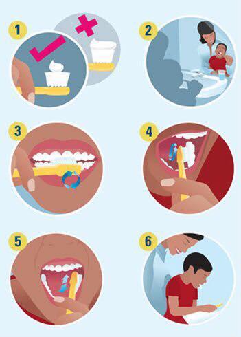 Dấu hiệu và cách phòng ngừa bệnh nha chu ở trẻ em - Ảnh 3