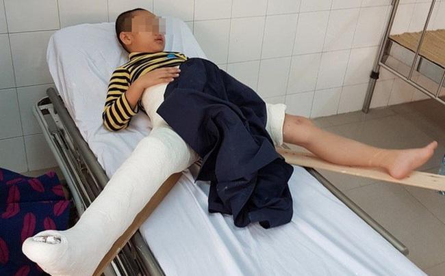 Cách chức hiệu trưởng và hiệu phó trường tiểu học Nam Trung Yên sau vụ học sinh gãy chân tại trường - Ảnh 2