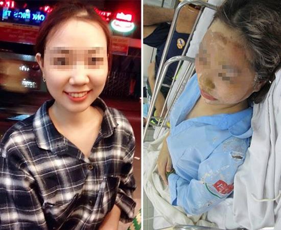 Nữ sinh bị tạt axit chưa nhận được tiền hỗ trợ: Sự thật phía sau lời phản pháo của Trương Ngọc Ánh - Ảnh 2