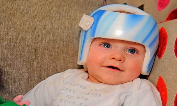 Bố mẹ cảnh giác với hội chứng đầu phẳng ở trẻ sơ sinh - Ảnh 2