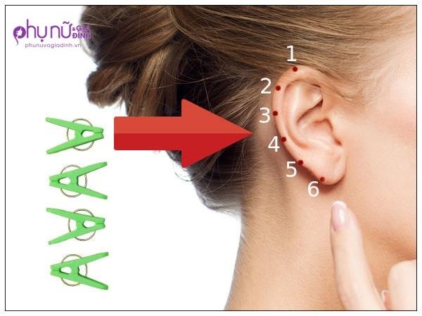 Kẹp điểm này ở tai, phương pháp chữa bệnh đang khiến cả thế giới 'phát sốt' - Ảnh 1
