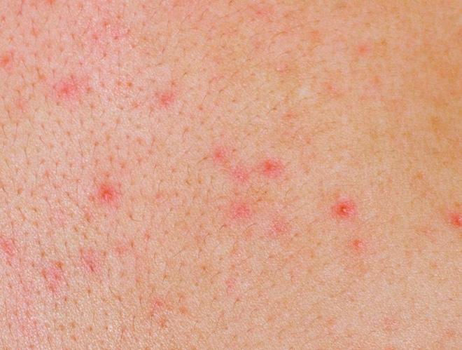 6 dấu hiệu cảnh báo bệnh ung thư máu mà bạn không nên bỏ qua - Ảnh 3