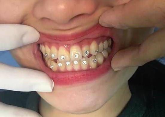 Mang họa sau khi đính 12 viên đá kim cương vào răng - Ảnh 1