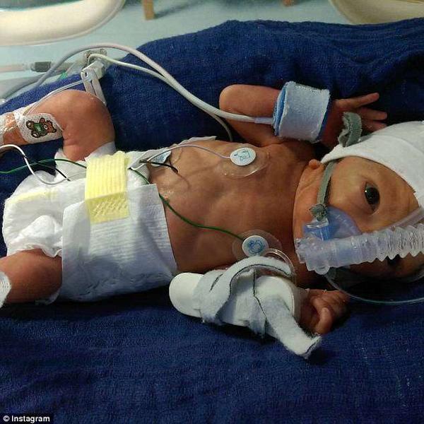 Vỡ ối lúc 18 tuần, mẹ đã làm việc này để cứu thai nhi chỉ có 1% cơ hội sống - Ảnh 3