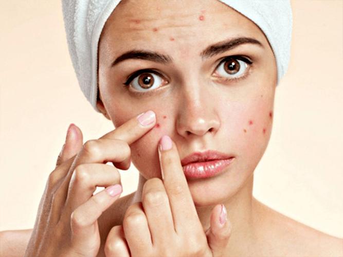 Mách bạn cách chăm sóc da cực kỳ đơn giản lại không tốn kém - Ảnh 3
