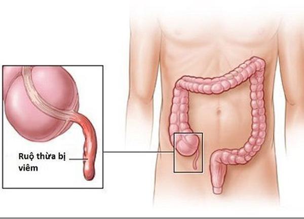 Những dấu hiệu viêm ruột thừa nhất định không được chủ quan - Ảnh 1