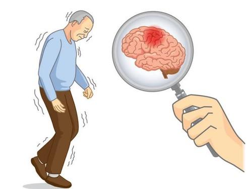 3 đặc điểm xuất hiện khi thức dậy vào buổi sáng cảnh báo bệnh nhồi máu não - Ảnh 1