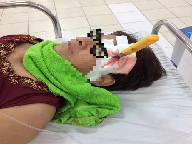 Bệnh nhân vào viện cấp cứu với con dao gọt trái cây ở thái dương - Ảnh 1