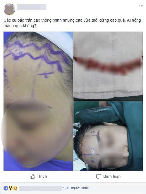 Cô gái làm đẹp bằng cách cắt da đầu để sửa trán cho bớt cao gây sốc - Ảnh 1