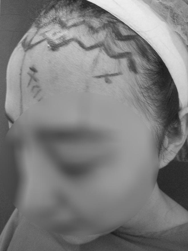 Cô gái làm đẹp bằng cách cắt da đầu để sửa trán cho bớt cao gây sốc - Ảnh 2