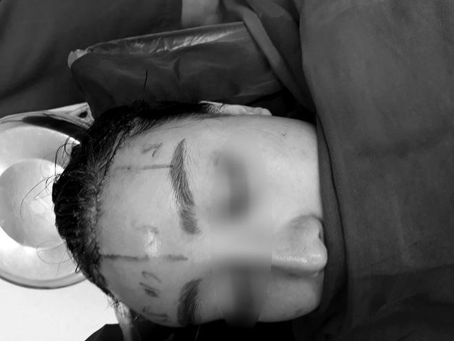 Cô gái làm đẹp bằng cách cắt da đầu để sửa trán cho bớt cao gây sốc - Ảnh 4