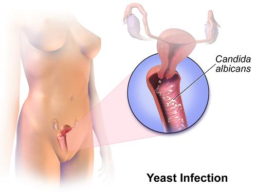 Những điều cần biết về bệnh nấm âm đạo: Không chỉ phụ nữ, nam giới cũng có thể bị mắc - Ảnh 2