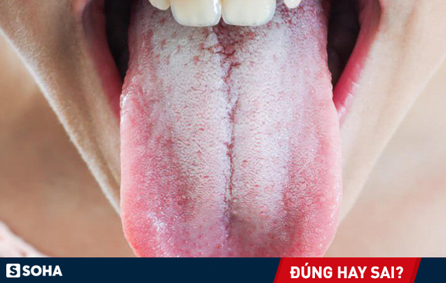 Có nên vệ sinh lưỡi mỗi lần đánh răng để ngừa hôi miệng: Nha sĩ trả lời rất thuyết phục - Ảnh 1