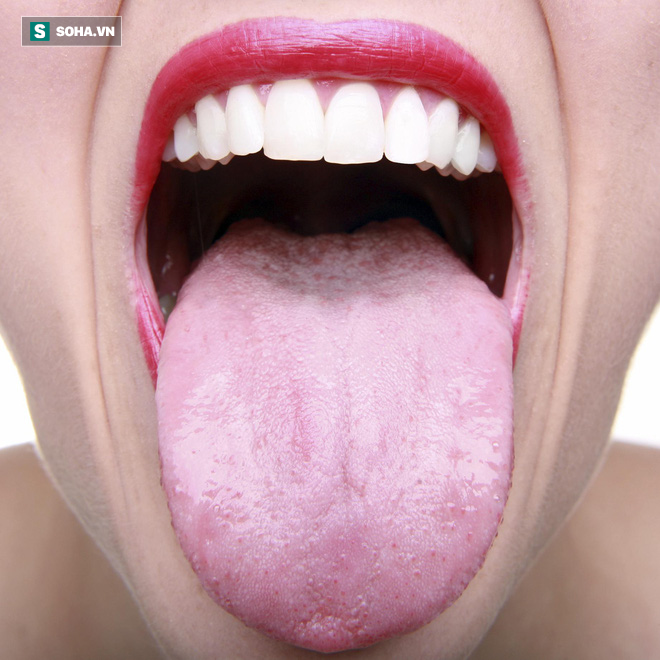 Có nên vệ sinh lưỡi mỗi lần đánh răng để ngừa hôi miệng: Nha sĩ trả lời rất thuyết phục - Ảnh 2