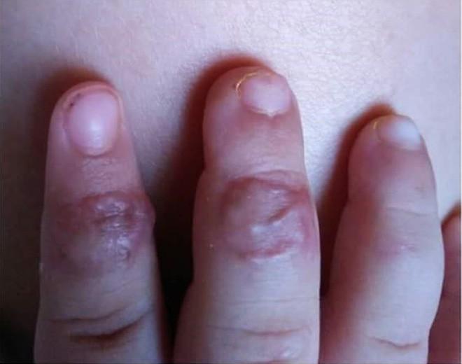 Đưa tay vào khe cửa sắt, bé trai hai tuổi ở Đồng Nai bị kẹp đứt đầu ngón tay - Ảnh 2