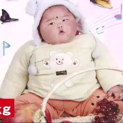 Bé gái 2 tuổi nặng gần nửa tạ, 9 năm sau nhìn vóc dáng mà bất ngờ - Ảnh 1