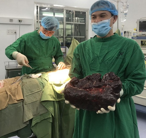 HIếm gặp: Khối u đa nang lách 'khổng lồ' nặng 5 kg ở phụ nữ 29 tuổi - Ảnh 1