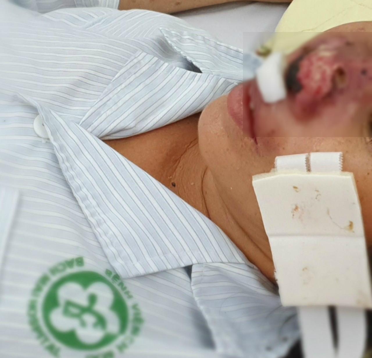 Hà Nội: Nữ bệnh nhân bị vi khuẩn whitemore 'ăn' cánh mũi - Ảnh 1