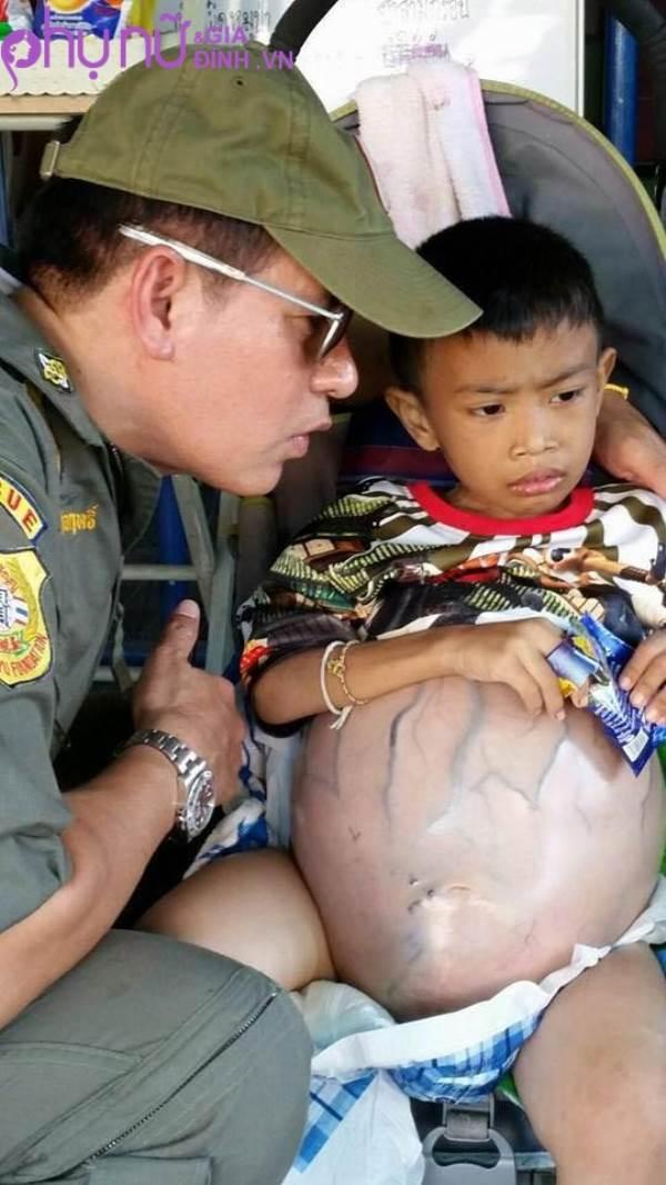 Đau đớn cậu bé 4 tuổi không thể đứng hay đi vệ sinh vì mang khối u khổng lồ trong bụng  - Ảnh 3