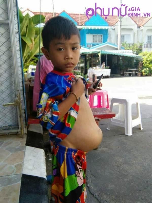 Đau đớn cậu bé 4 tuổi không thể đứng hay đi vệ sinh vì mang khối u khổng lồ trong bụng  - Ảnh 2
