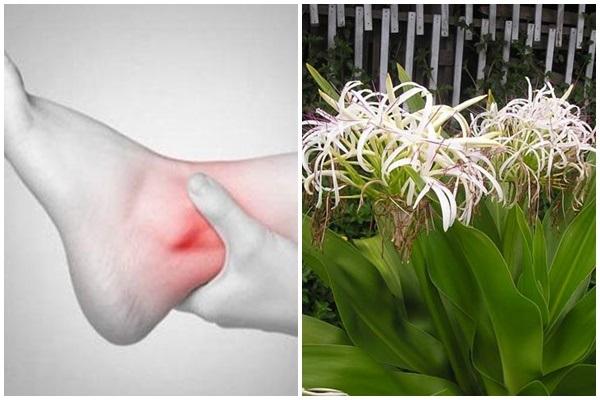 Dùng lá náng đắp lên chân hỗ trợ trị bong gân hiệu quả