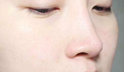 Da trắng bóc, mịn màng như gái Hàn Quốc nhờ 1 viên đá lạnh - Ảnh 3