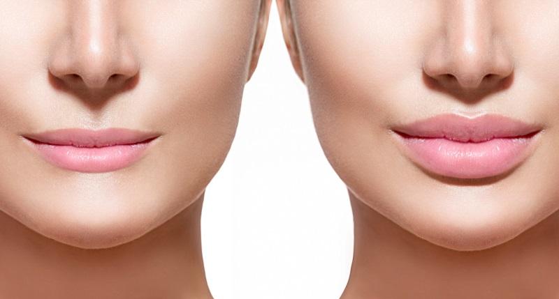 Những cách làm hồng môi đơn giản tại nhà.