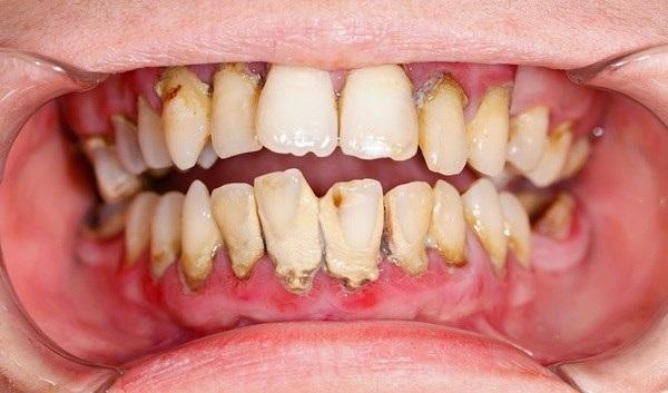 Pha giấm ăn và muối để súc miệng theo cách này, cao răng cứng như vôi cũng sạch bong tức thì chỉ sau 3 phút - Ảnh 1