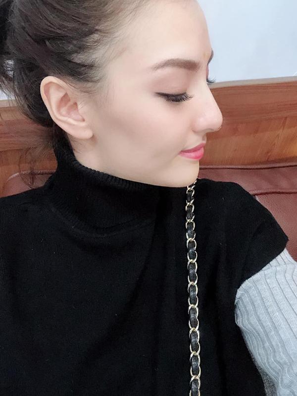 Người mẫu Hồng Quế công khai 'dao kéo' mũi để thay đổi vận mệnh - Ảnh 2