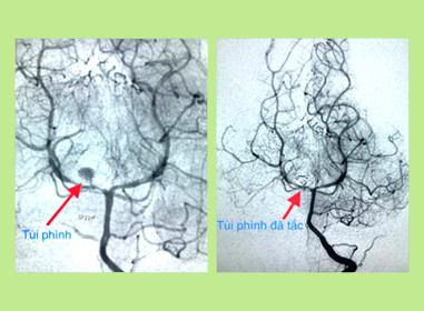 Cứu sống bé gái gần 3 tuổi bị vỡ túi phình mạch máu não - Ảnh 1